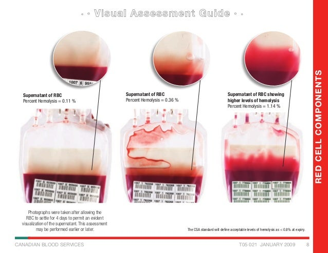 Visual Inspection Guide For Blood Compopnents
