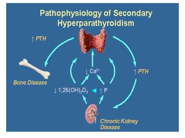 hyperparathyroidism can also result from malabsorption of vitamin d
