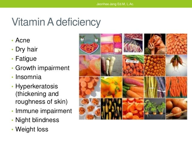Vitamin A Deficiency Amp Liver Blood Deficiency Tcm