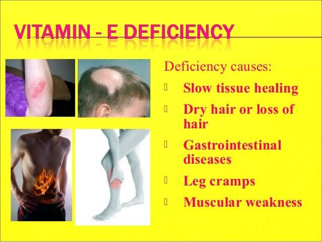Vitamin E MUHAMMAD MUSTANSAR