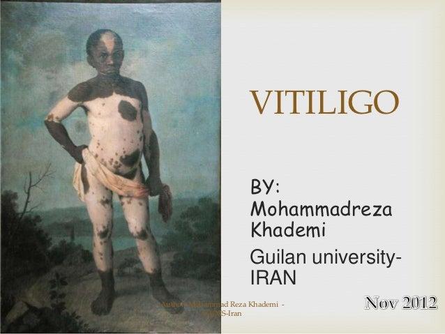 VITILIGO                      BY:                      Mohammadreza                      Khademi                      Guil...