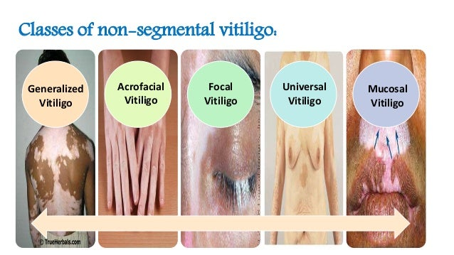 depigmentation of skin+steroid injection