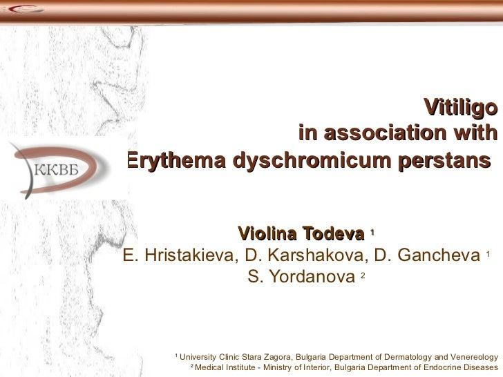 Vitiligo in association with Erythema dyschromicum perstans