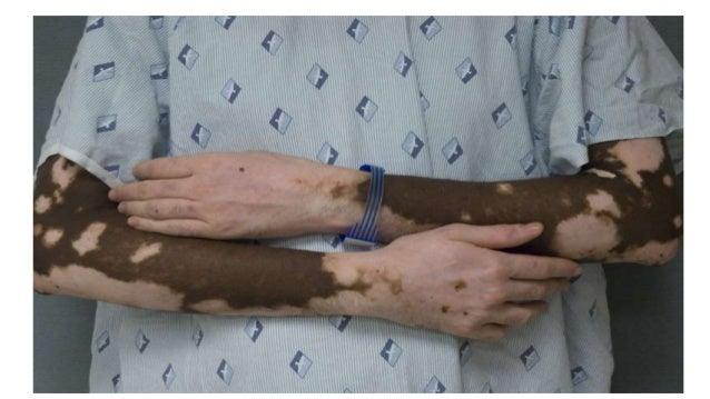 Ein Medizinforscher, Ernährungsspezialist, Gesundheitsberater Und Ehemaliger Chronischer Vitiligo- Patient Kann Ihnen Beib...
