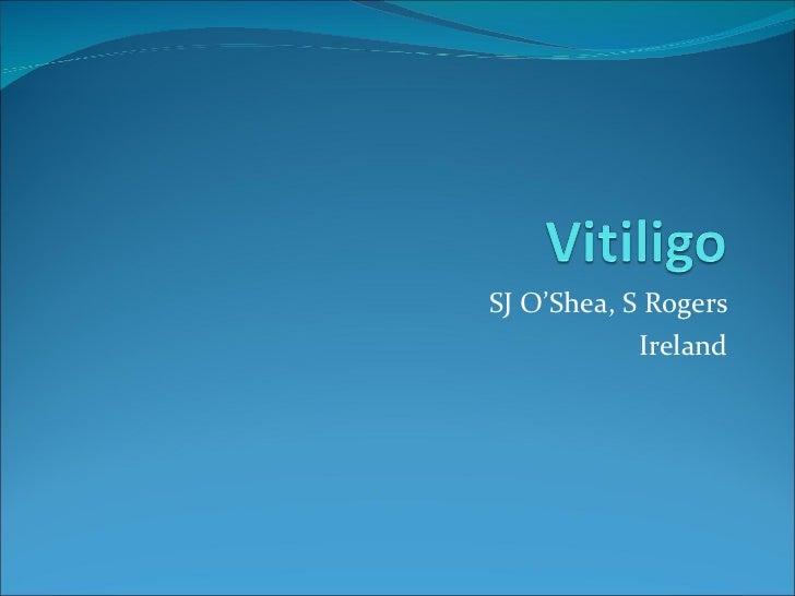 Vitiligo  - Sally O'Shea. Ireland