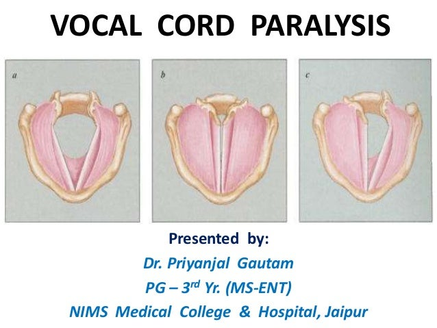 VOCAL CORD PARALYSIS Presented by: Dr. Priyanjal Gautam PG – 3rd Yr. (MS-ENT) NIMS Medical College & Hospital, Jaipur