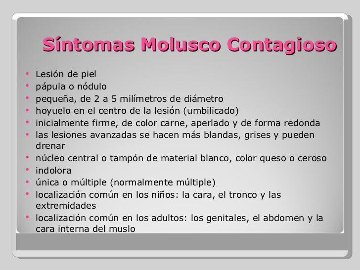 molluscum contagiosum steroid cream
