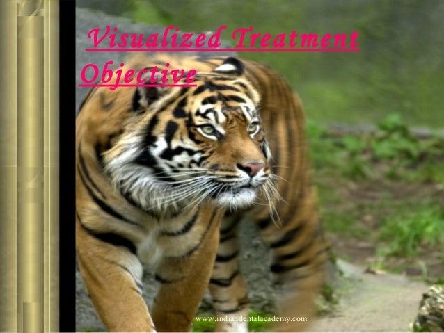 Visualized Treatment Objective  www.indiandentalacademy.com