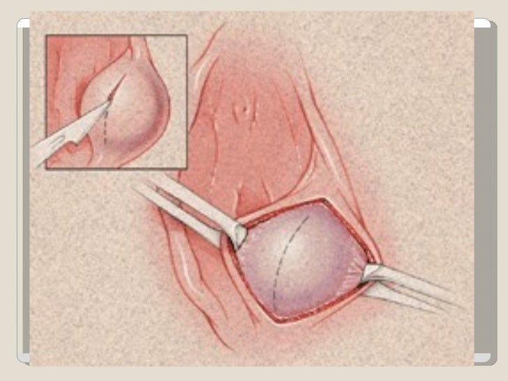 Vulva Pictures L 38