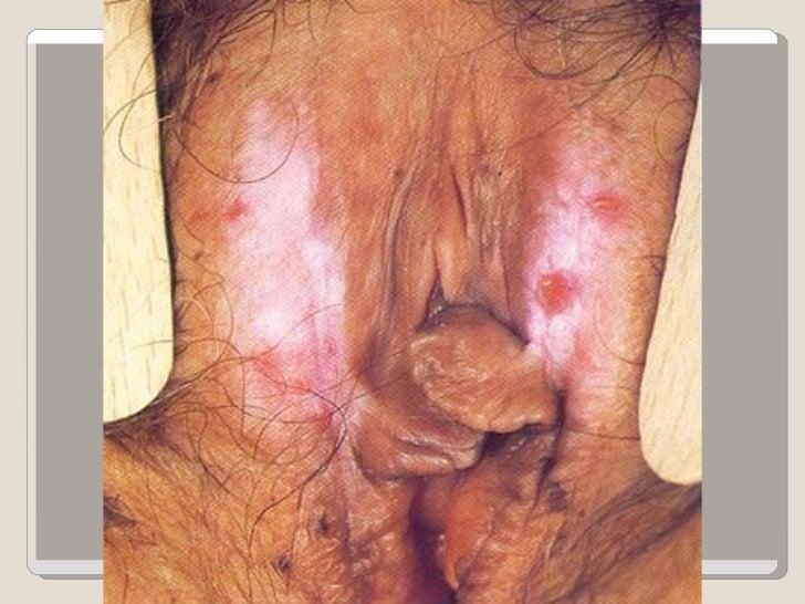 vaginal eczema #10
