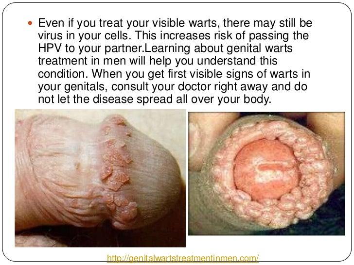 Can you get genital warts through masturbation