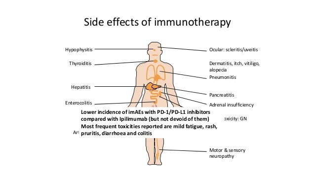 effects of cancer Some of the most common side effects of immunotherapy include fatigue,  one  of cancer cells' survival strategies is to hide from immune.