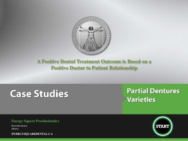Partial Denture Varieties