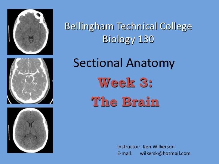 Bellingham Technical College        Biology 130 Sectional Anatomy     Week 3:    The Brain           Instructor: Ken Wilke...