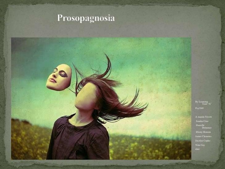 """Prosopagnosia<br />By Learning Tean """"A""""<br />Psy/340<br />A manda Trivett <br /> Sandra Cruz<br /> Danielle Delaunay <br /..."""