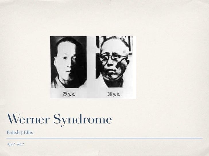 Werner SyndromeEalish J EllisApril, 2012