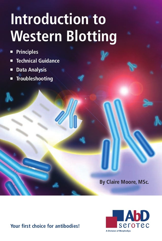 Introduction toWestern Blotting 	 Principles 	 Technical Guidance 	 Data Analysis 	 Troubleshooting                       ...