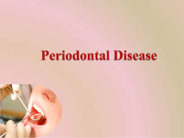 What are periodontal diseases?
