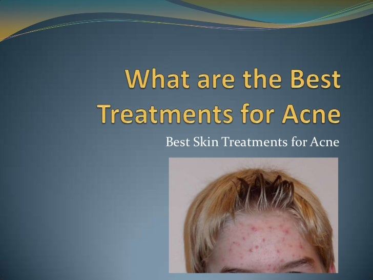 Best Skin Treatments for Acne