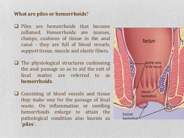 Zithromax And Hemroids
