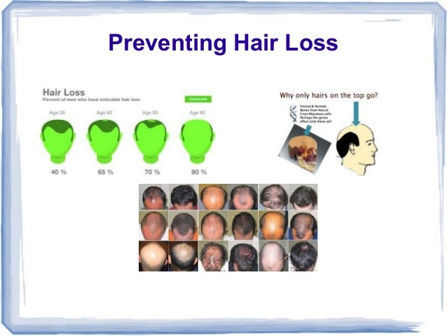 What Causes Hair Loss and How to Prevent it