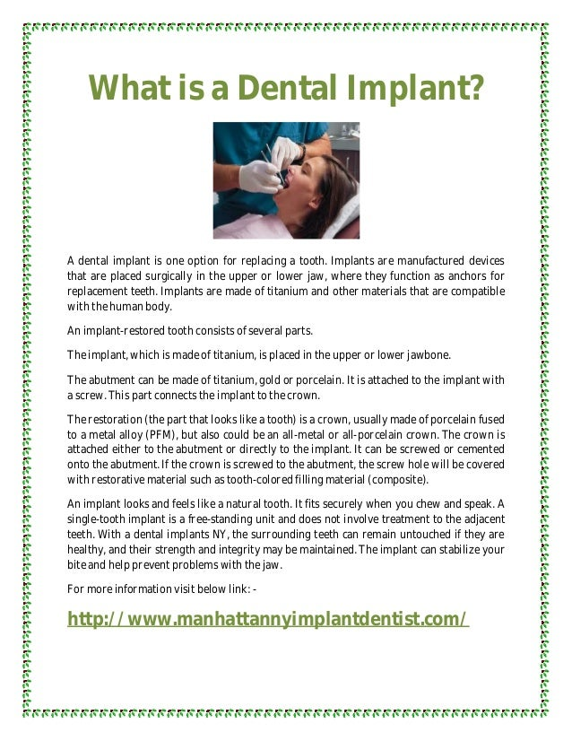 What is a Dental Implant?A dental implant is one option for replacing a tooth. Implants are manufactured devicesthat are p...