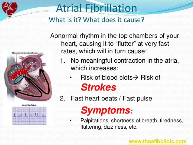 How to Reduce Heart Palpitations advise