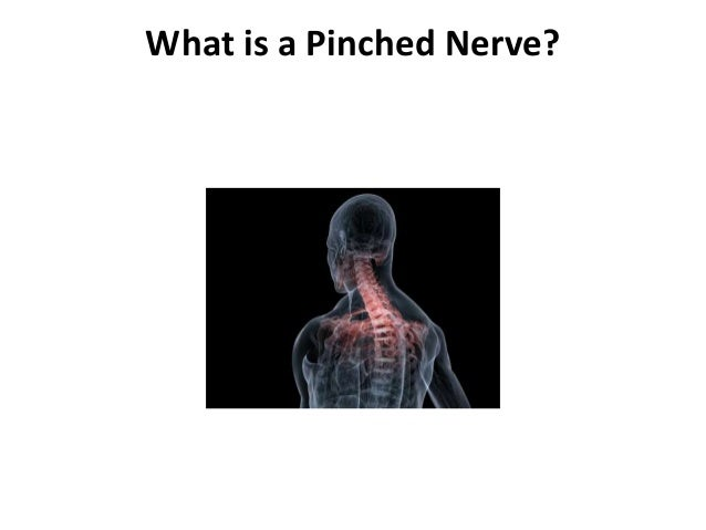 What is a Pinched Nerve?
