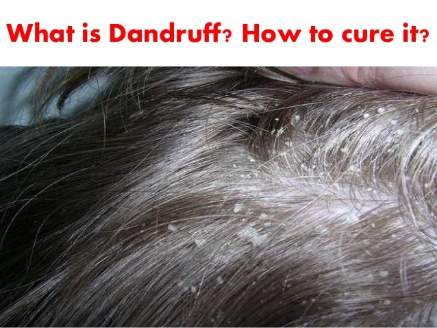 What is dandruff?