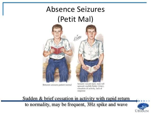 Seizure Information | Safety Info | Pinterest