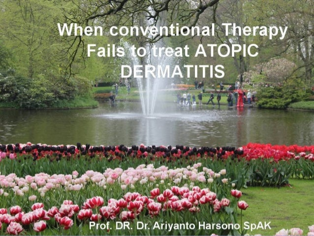 When conventional therapy fails to treat atopic dermatitis