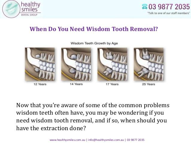 hurt wisdom teeth ivs do