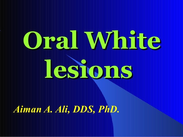 Oral White lesions