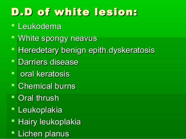 D.D of white lesion:            Leukodema White spongy neavus Heredetary benign epith.dyskeratosis Darriers dise...