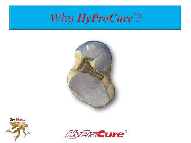 Sinus tarsi devices are not all the same! What makes HyProCure® so special?