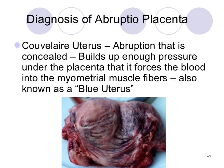 Wiki Placental Abnormalities1