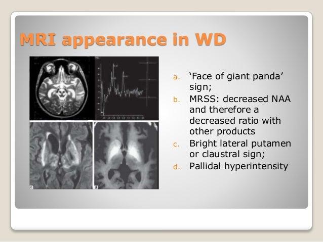 Wilson s disease