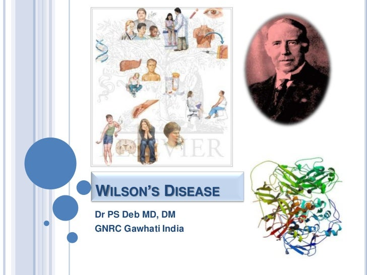 Wilson's Disease<br />Dr PS Deb MD, DM<br />GNRC Gawhati India<br />