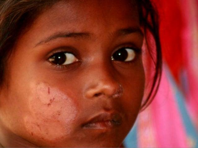 World Leprosy Day 2014