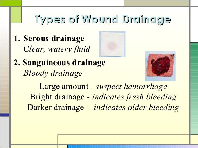 Approximated Wound furthermore 439312138627225785 moreover Use Atraumatic Dressing Treatment A Painful Wound Resulting Herpes Zoster besides Talking About Wound Drainage Serousserosanguinoussanguinous moreover INFL013. on serous vs serosanguinous