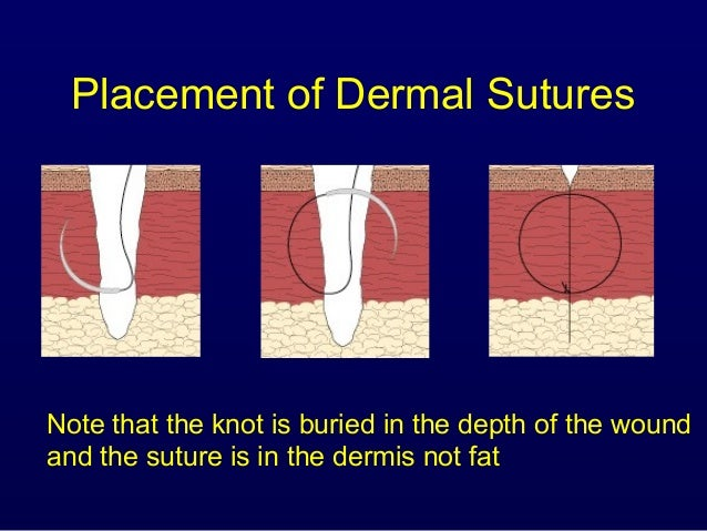 How To Remove Vertical Mattress Sutures Suturing Sinaiem