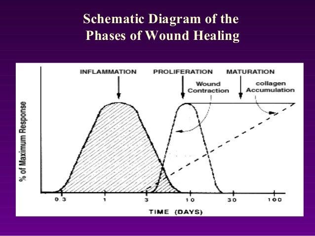 Wound Healing Presentation