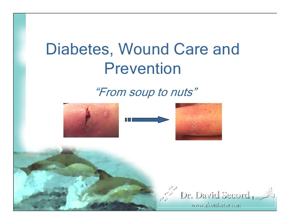 """Diabetes, Wound Care and        Prevention      """"From soup to nuts""""                                1"""