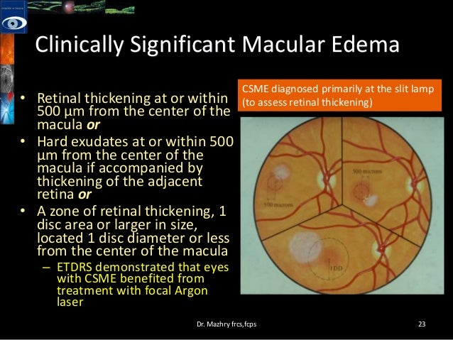 diabetic macular edemacurrent treatment modalities