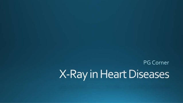 X-Ray in Heart diseases