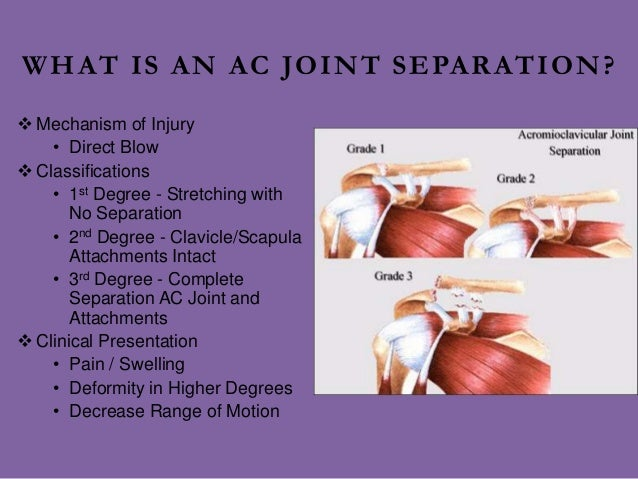 AC Shoulder Separation