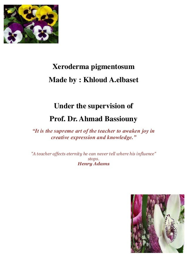 Xeroderma pigmentosum         Made by : Khloud A.elbaset            Under the supervision of         Prof. Dr. Ahmad Bassi...