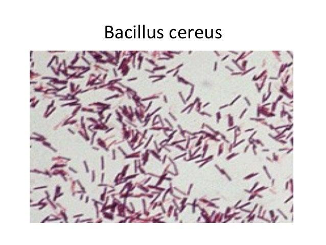 Gram stain bacillus cereus