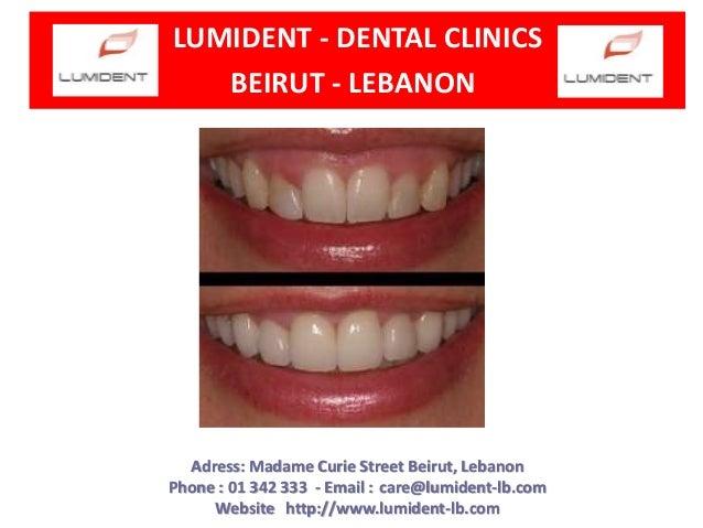 LUMIDENT - DENTAL CLINICS BEIRUT - LEBANON  Adress: Madame Curie Street Beirut, Lebanon Phone : 01 342 333 - Email : care@...