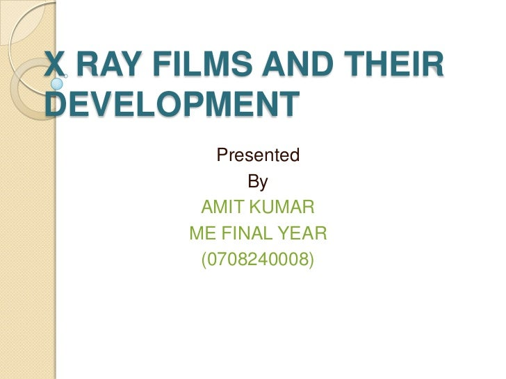 X RAY FILMS AND THEIRDEVELOPMENT          Presented             By        AMIT KUMAR       ME FINAL YEAR        (0708240008)